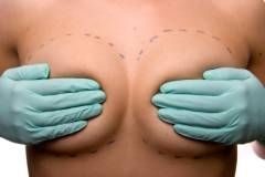 Силиконовая грудь грозит раком?