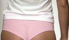 Стринги – причина грибковых инфекций у женщин!