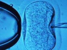 Высчитано количество яйцеклеток, которое лучше всего забирать для ЭКО