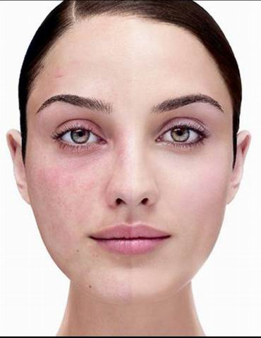 Как убрать красные прожилки на лице?