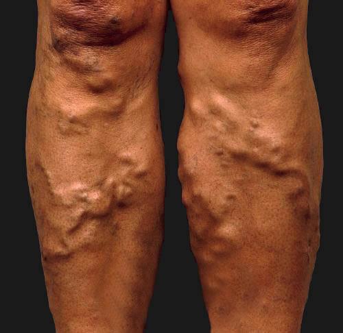 «Пудовые» ноги