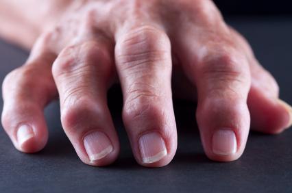 Влияние артрита на женское здоровье