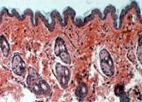 Обнаружена генетическая основа экземы