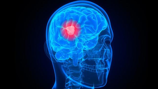 Новая стратегия лечения самого опасного рака мозга