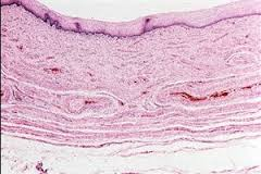 Пациенты с мутациями рака шейки матки живут меньше