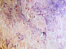 Исследователи сообщили о прорыве в лечении рака кожи