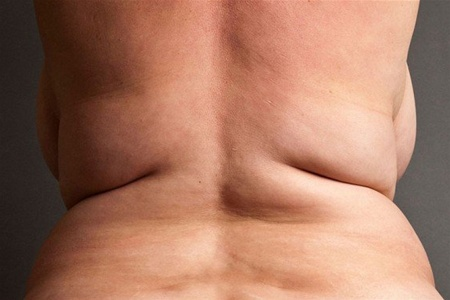 Диабет 2 типа влияет на риск рака груди