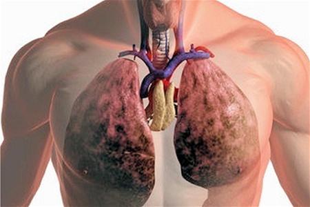 Найдена причина рака легких у некурящих