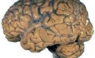 Инъекции гормона вилочковой железы вылечивают рак мозга