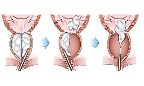 Аденома простаты после операции