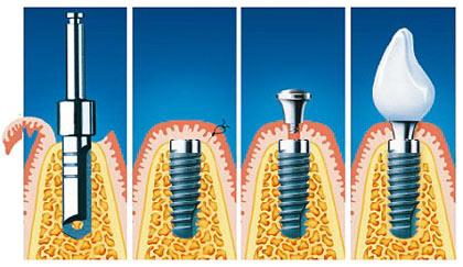 Имплантация зубов лазером – инновационный процесс в современной имплантологии