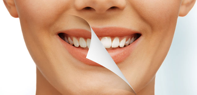 Белоснежная улыбка без помощи стоматолога