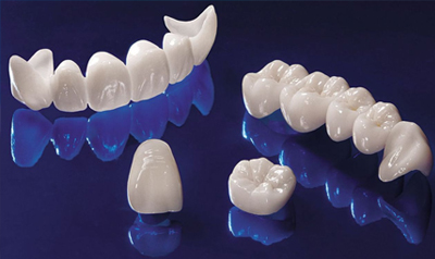 Планируете сделать Зубы? А знаете, что такое безметалловая керамика?