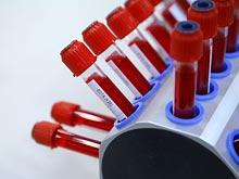 Исследователи опробовали универсальный тест для диагностики рака