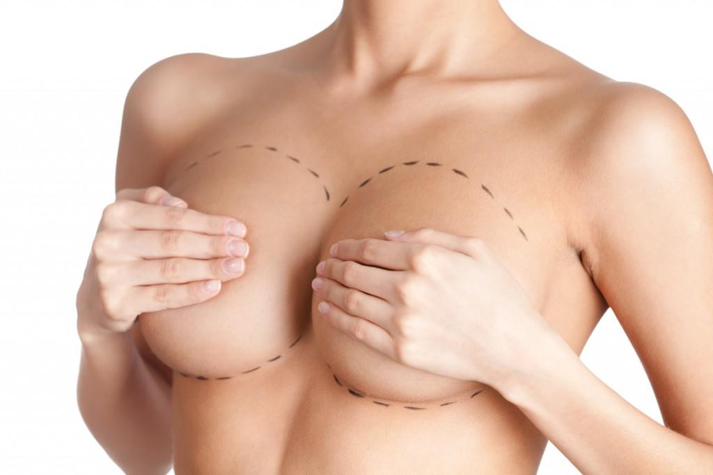 Маммопластика. Что нужно знать?
