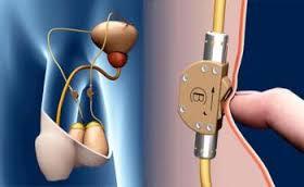 Мужская контрацепция: кнопка, чтобы контролировать эякуляцию