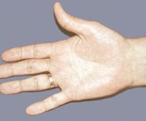 Рука человека отражает наличие скрытно развивающегося рака