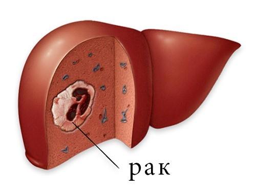 Предложена новая классификация рака печени