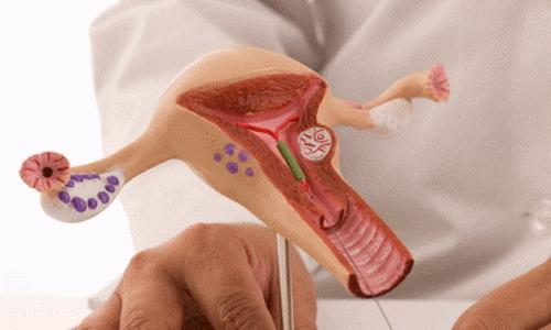 Могут ли женские контрацептивы вызывать гинекологические болезни