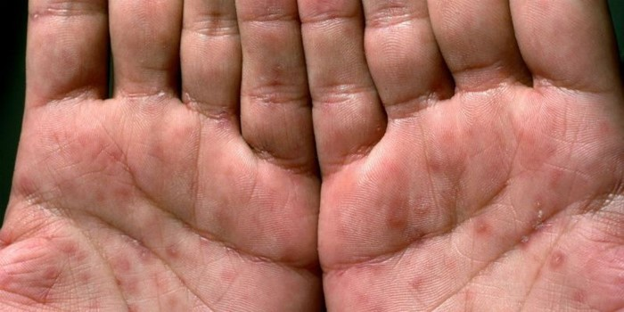 Заражение сифилисом бытовым путем — возбудитель, инкубационный период, стадии, лечение и профилактика