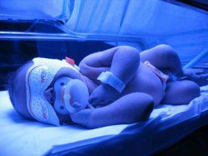 В каких случаях лампа для фототерапии новорожденных противопоказана к применению?
