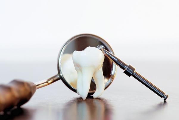 Удаление зуба. Общая информация