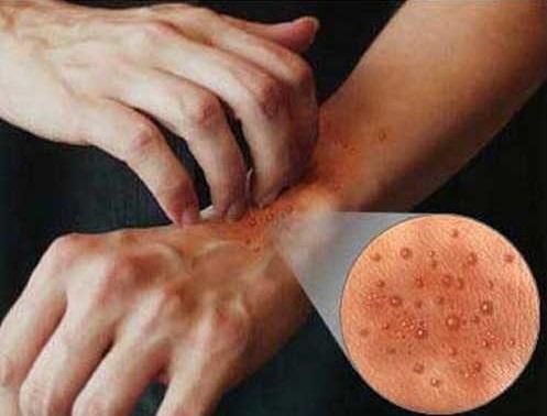 Лечение нейродермита народными средствами