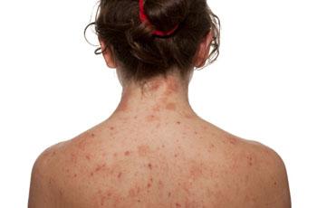 Редкие аллергены, которые могут провоцировать аллергию