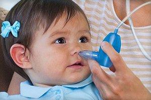 Как выбрать аспиратор для новорожденных и правильно им пользоваться?