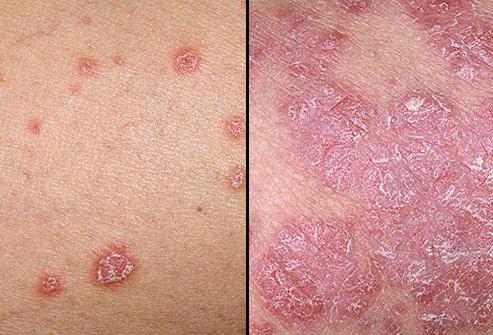 Псориаз: передается или нет, этиология, патогенез