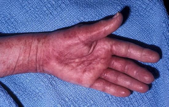 Амилоидоз — что это такое: причины, симптомы и лечение