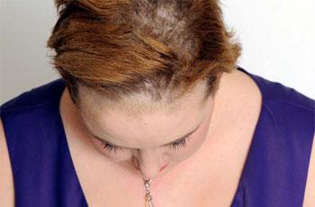 Грибок кожи головы, симптомы, диагностика, лечение