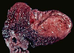Рак желудка: причины, симптомы, лечение