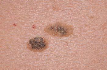 Кератоз кожи, причины, виды, симптомы, лечение
