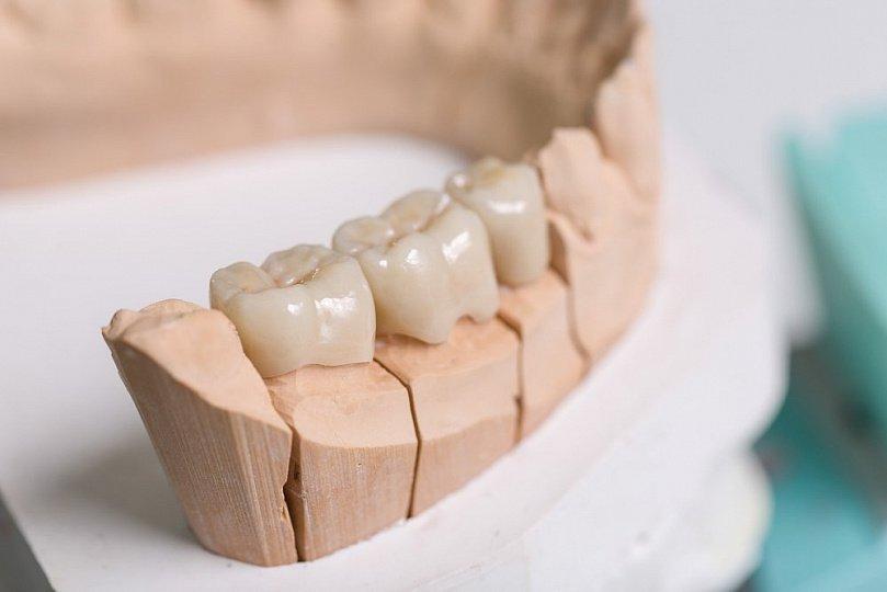 Аллергия после лечения в кресле стоматолога