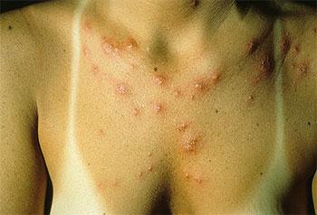 Фотодерматоз (аллергия на солнце): симптомы и лечение
