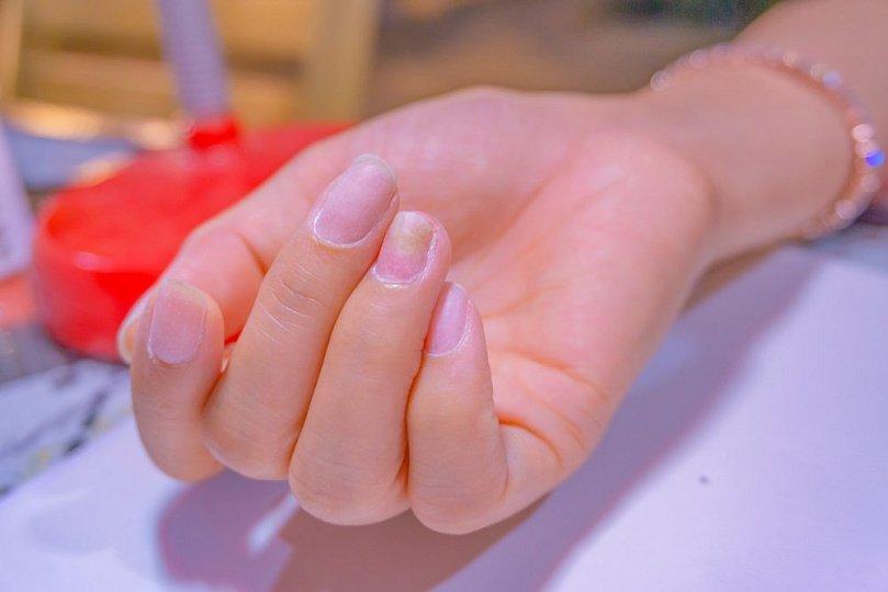 Болезни ногтей: инфекция, травма и не только