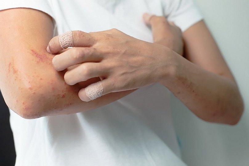 Признаки рожистого воспаления