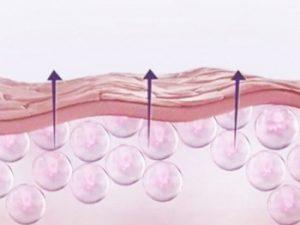Мнение косметологов о филере с гиалуроном