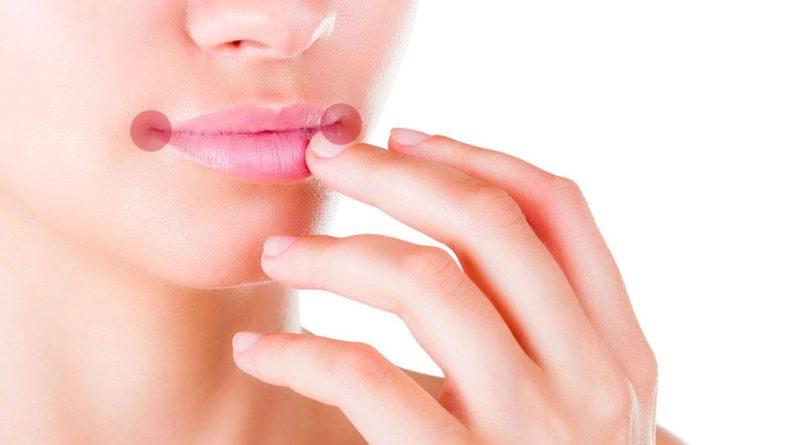 Причины заедов в уголках рта