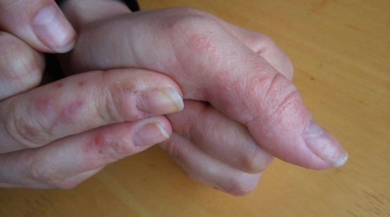 Главные причины и лучшие методы лечения трещин на пальцах рук