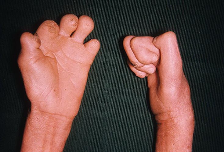 Проказа (лепра): болезнь, симптомы, лечение, причины, прогноз