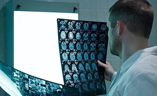Сканирование мозга предскажет шизофрению
