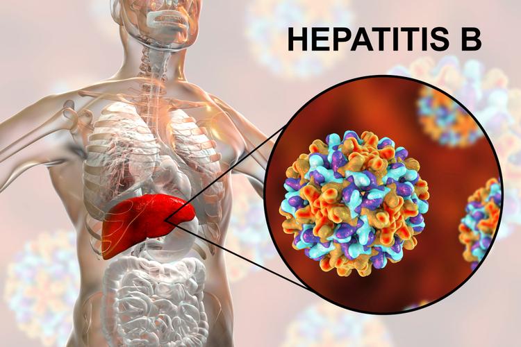 Гепатит В: что это такое и как передается