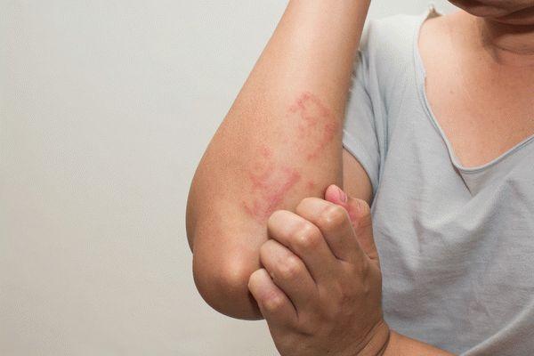Аллергический контактный дерматит: симптомы, диагностика, лечение