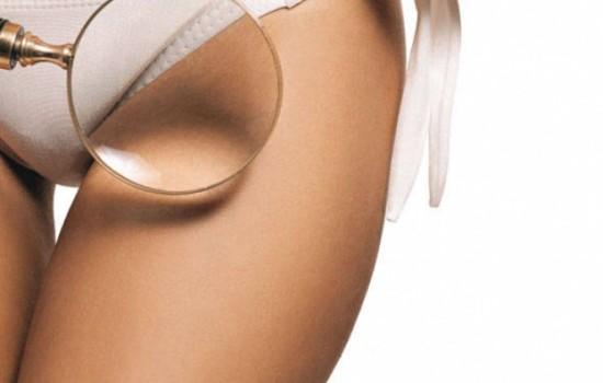 Риск для здоровья: выявлены неизвестные ранее опасности удаления лобковых волос