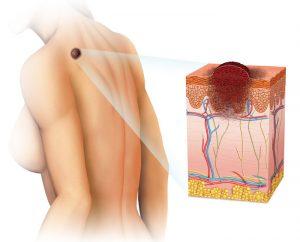 Найдено новое средство для лечения меланомы