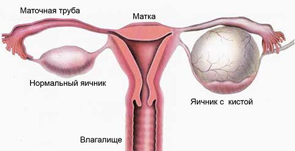 Апоплексия яичника — что нужно знать?