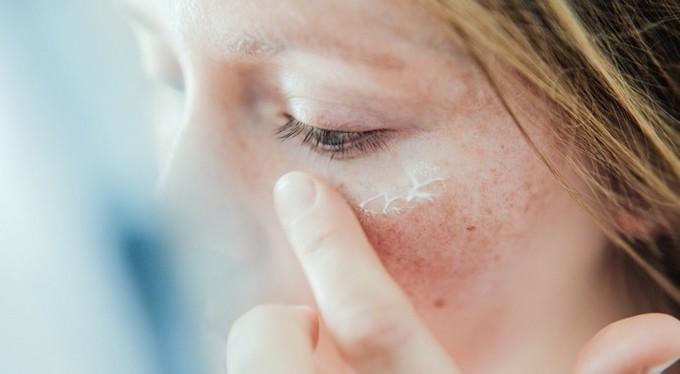 Как бороться с гиперпигментацией