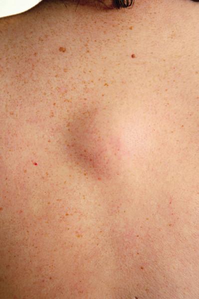 Как избавиться от жировиков под кожей